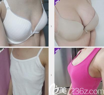 韩国麦恩李圣郁假体隆胸案例效果对比图