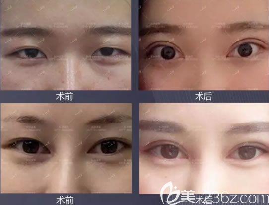 杭州美莱张霞飞双眼皮修复案例