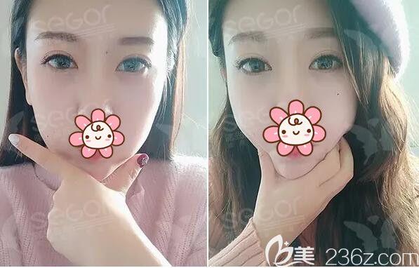 怕缝合拆线恢复期影响工作,就到常州曙光做了韩式内吸祛眼袋告别遗传+熬夜形成的大眼袋