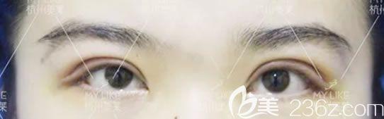 杭州美莱做双眼皮案例2天效果