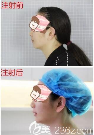 杨芹医生注射隆鼻+下巴对比案例