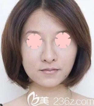30岁宝妈在柳州仁美整形做全脸线雕提升前后对比照片及恢复过程分享