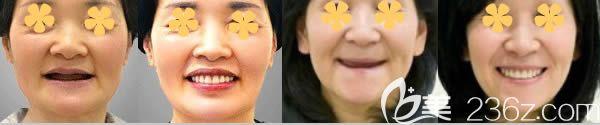 武汉清华阳光口腔全口种植牙案例效果
