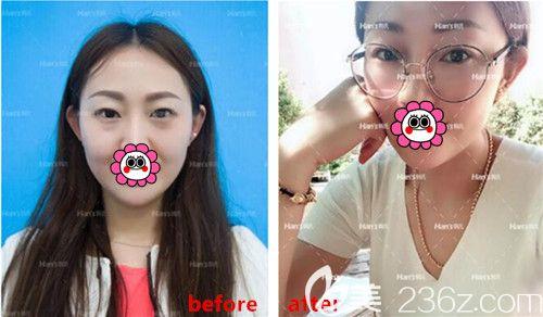三亚韩氏医疗美容不去脂肪综合祛眼袋真人前后效果对比