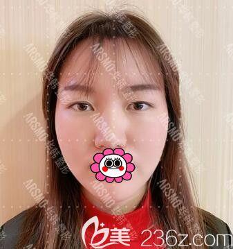 面部线雕效果好吗?看我在长沙华韩华美做全脸线雕提升一周后的前后对比照片!