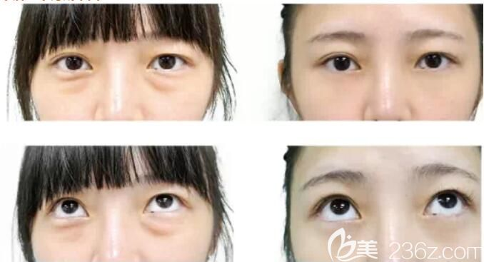 以为自己是浮肿型,面诊常熟时代后才知道是脂肪型眼袋做了脂肪溶解、眶隔修复定制无痕祛眼袋