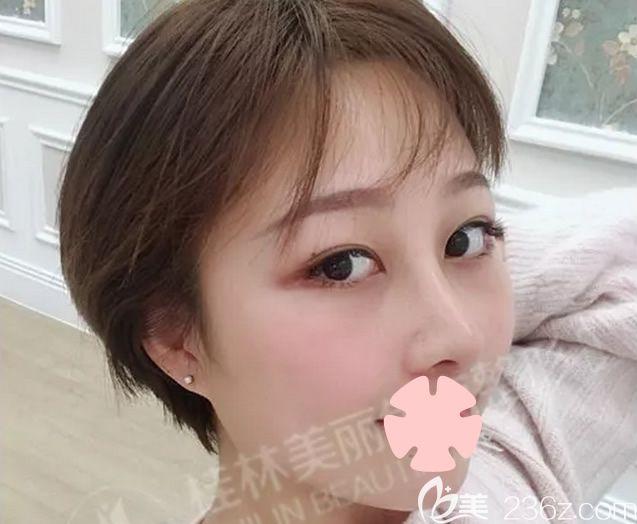 上传我在桂林美丽焦点整形做自体耳软骨+膨体鼻综合隆鼻术后15天的美鼻照片