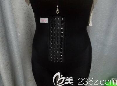 在桂林美丽焦点整形做360腰腹部环形吸脂一个月后跟水桶腰说拜拜