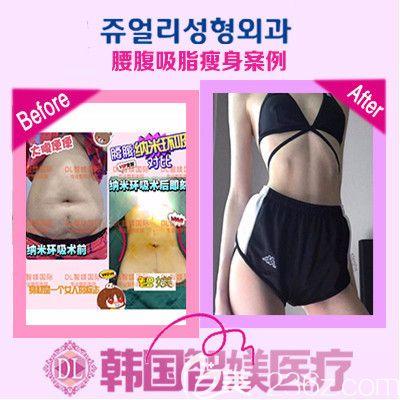 广州智媄李阳医生吸脂案例