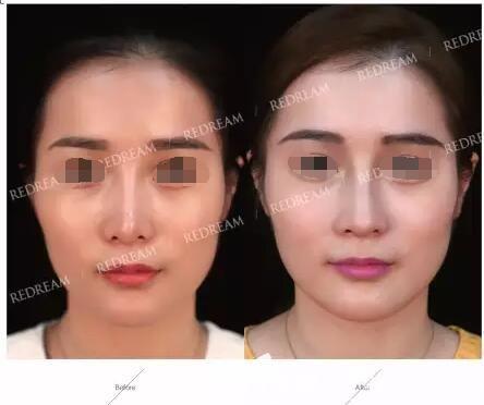 鼻尖歪斜鼻假体轮廓明显的失败鼻到苏州薇琳做了假体置换+自体鼻中隔软骨鼻综合修复手术