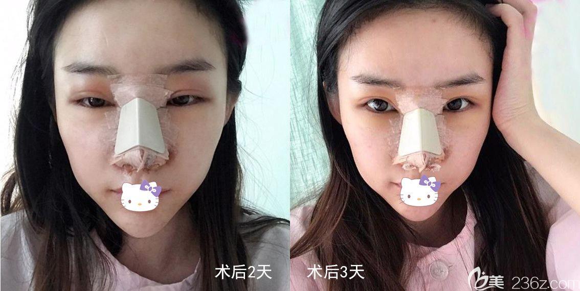 鼻综合术后恢复过程
