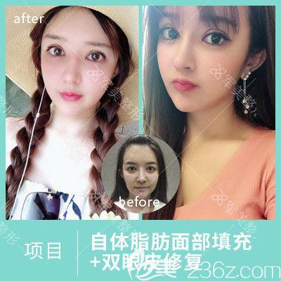 广州军美王世虎脂肪填充和双眼皮修复案例