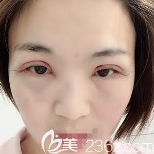 郑州菲林做全切双眼皮+开眼角手术后当天