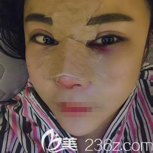 郑州菲林做鼻基底填充手术后三天
