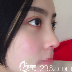 郑州菲林做鼻基底填充手术术后十二天