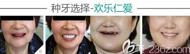 沈阳欢乐口腔全口种植牙案例效果图