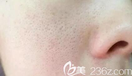 海南红妆双美介绍毛孔粗大怎么办?