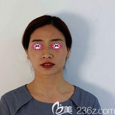 衡阳美莱医疗美容医院徐淑卿术前照片1
