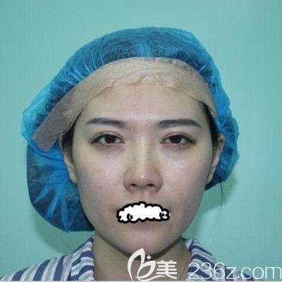 天津联合丽格第三医疗美容医院刘容嘉术前照片1