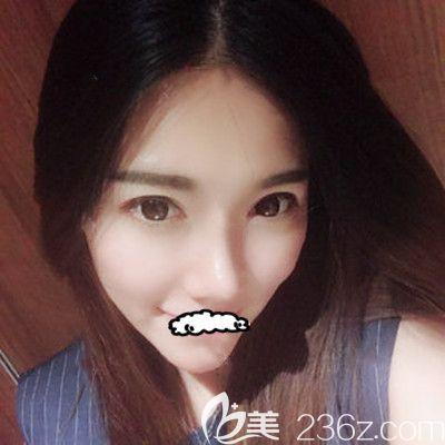 天津联合丽格刘容嘉医生耳软骨鼻综合整形术后15天对比照