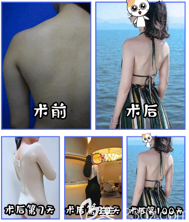 深圳仁安雅苗春背部吸脂案例
