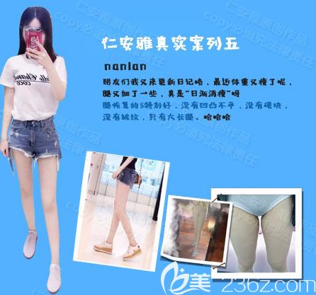 深圳仁安雅苗春宝丽太大腿吸脂案例