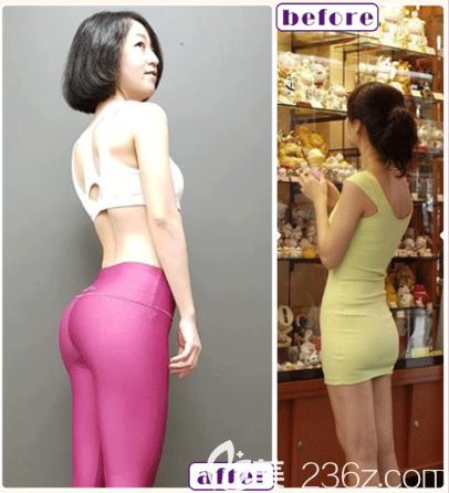 深圳南雅潘龙升自体脂肪丰臀案例