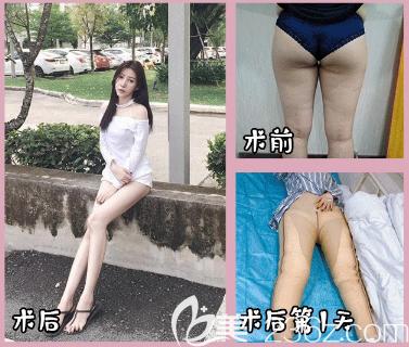 深圳南雅潘龙升大腿吸脂案例