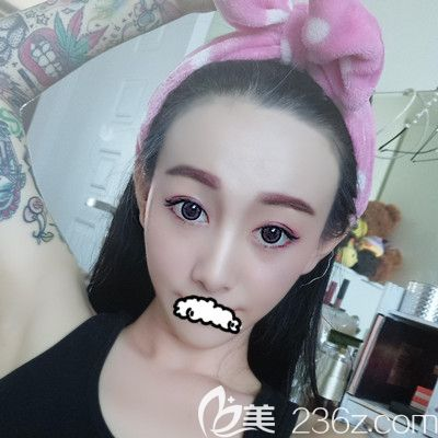 脸上痘疤毛孔粗大不见了感谢天津联合丽格刘嵋做的果酸换肤60天恢复图展示术后会不会反弹