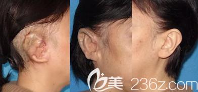 耳朵修复多次案例