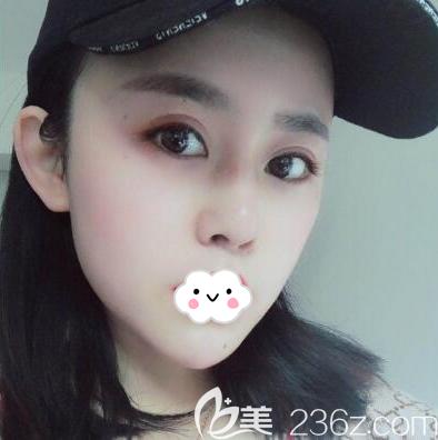 分享内部员工找成都玉之光刘中国做自体脂肪全脸修复和硅胶垫下巴的全过程
