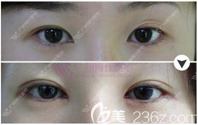广州博仕张建军双眼皮修复案例