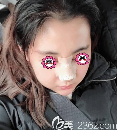 王小东医生给我做鼻综合第3天样子