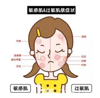 敏感肌与过敏肌的区别
