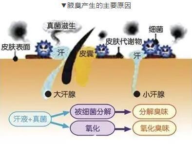 腋臭产生的主要原因介绍