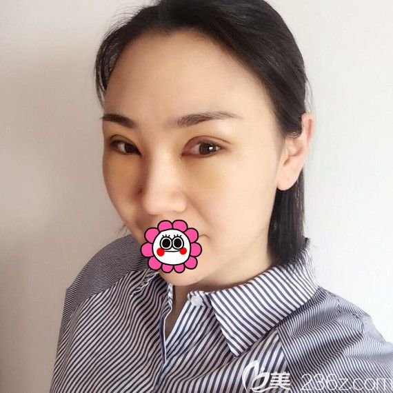 这是我到黑龙江瑞丽找杨永胜做的眼综合手术,分享我体验手术前的心理和术后恢复经历给犹豫不定的你一些参考
