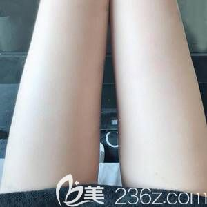 涨知识的良心帖-谈谈我在洛阳华美做的大腿吸脂手术经过