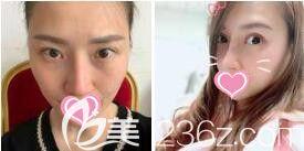 上海美莱医疗美容医院杜园园眼修复真人案例