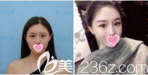 上海艺星医疗美容医院唐毅眼修复真人案例