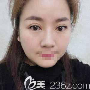 自从在郑州华领做了面部吸脂后 春风得意正当时
