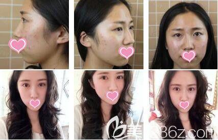 上海艺星医疗美容医院眼综合+硅胶垫下巴真人案例
