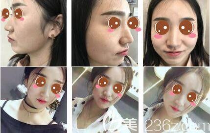 上海艺星医疗美容医院面部吸脂真人案例
