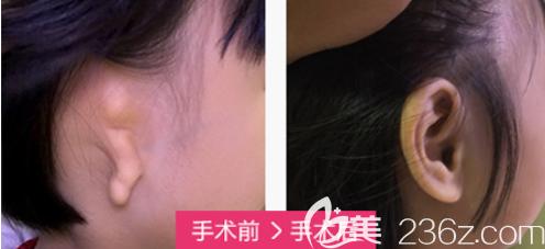北京丽都小耳畸形修复案例