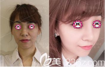 北京薇琳医美王小东医生假体隆鼻案例