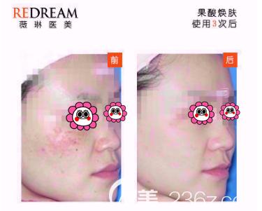 北京薇琳刘丽医生果酸焕肤案例