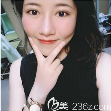 看我两个朋友找广州紫馨李石峰做的双眼皮效果不错,于是我也去做了眼综合