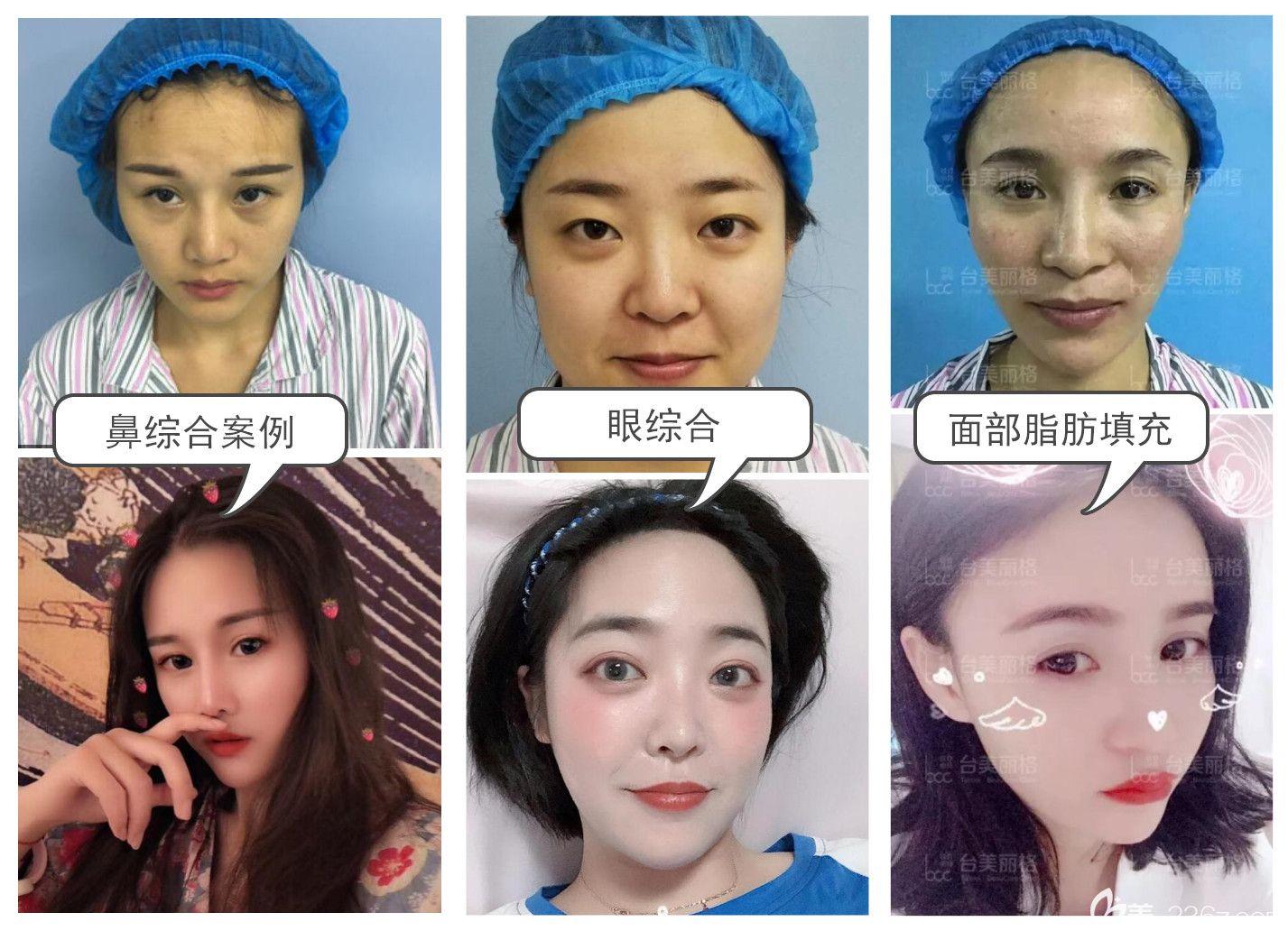 鼻综合案例+眼综合案例+自体脂肪全脸填充案例效果前后对比图