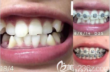 深圳乐莎莎口腔牙齿矫正效果对比图