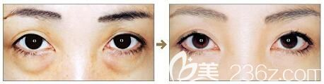 沈阳和平元辰医疗美容门诊部祛眼袋真人效果对比照