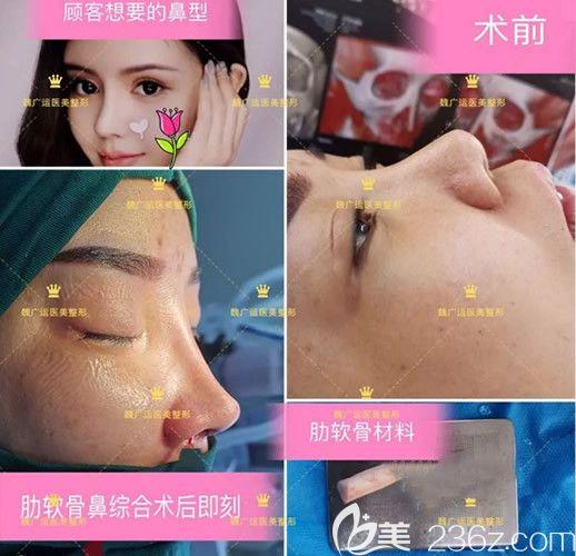 魏广运做鼻子怎么样 他在兰州韩美整形坐诊时自体肋软骨鼻综合隆鼻+割双眼皮案例展示啦